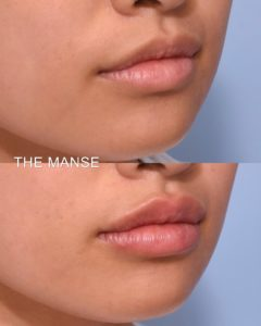 Lip fillers before and after subtle