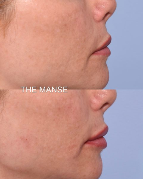 Lip profile before and after dermal fillers.