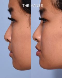 Lip profile (side view) before and after lip fillers