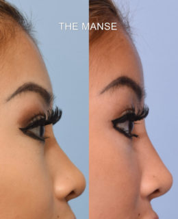 Before and after forehead filler, nose filler and tear trough filler