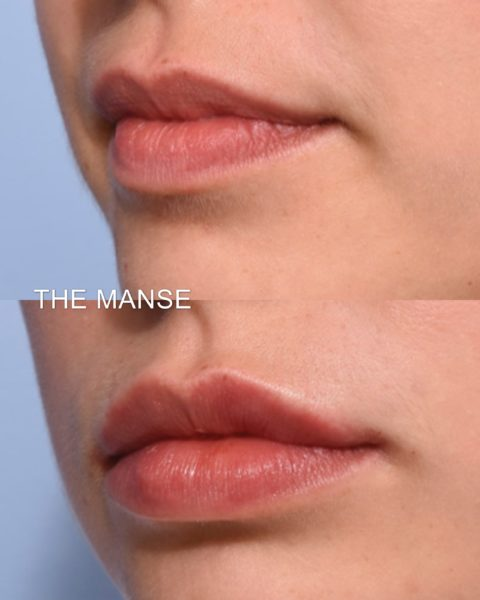 Lip Anatomy with Ageing - Best Clinic Sydney for Dermal Fillers