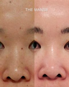 Before and after mole removal, Asian skin