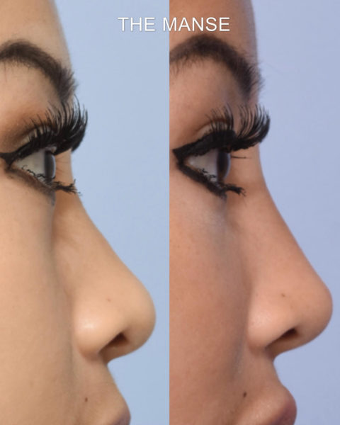 Before and after tear troughs / cheek filler to help correct flat cheek profile