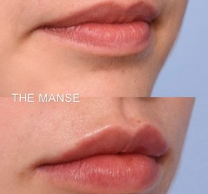Before and after lip filler for lip volume and oral commissure improvement. Making a downturned mouth look upgoing.