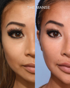 Before and after Browlift, Wrinkle treatment for crows feet and frowns lines. Also forehead filler temples filler brow filler, tear trough filler, cheek filler, jawline filler chin filler, marionette filler and lip fillers and masseter slimming