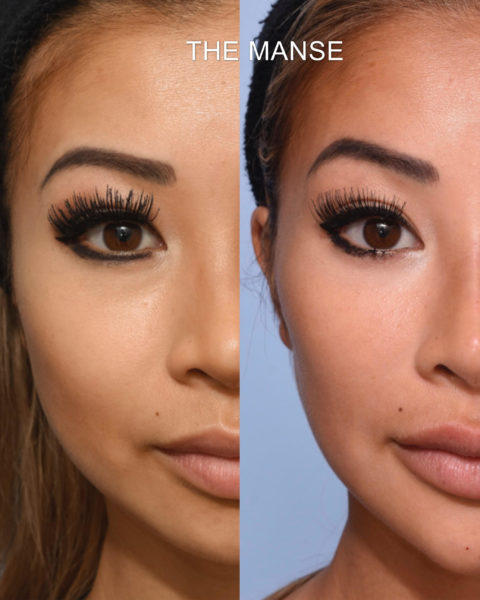 Before And After Full Face Injecting Best Clinic Sydney