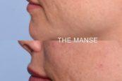 Lip profile dermal fillers
