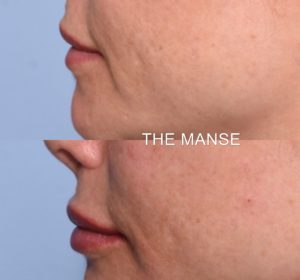 Lip profile dermal fillers
