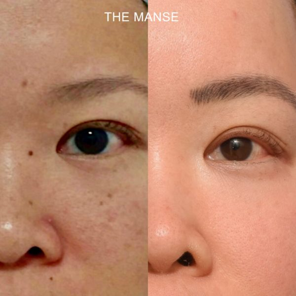 Before and after freckle removal mole removal face