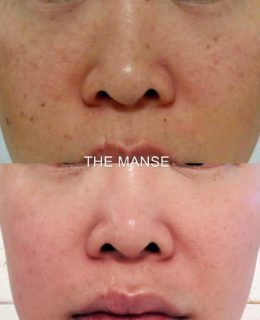 Mole and pigmentation removal asian skin