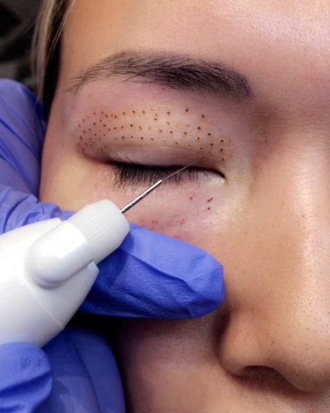 Plasma Pen - Best Clinic Sydney for Dermal Fillers