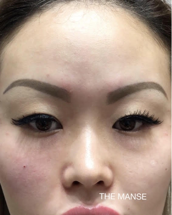 Front cheek filler / tear trough filler - Best Clinic Sydney