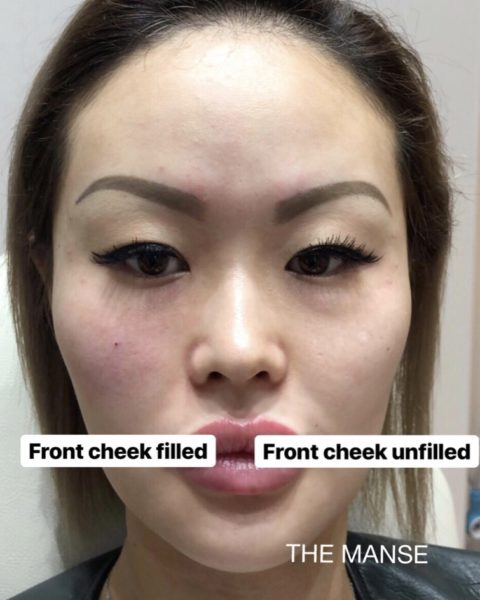 After one side of front cheeks is treated with dermal filler