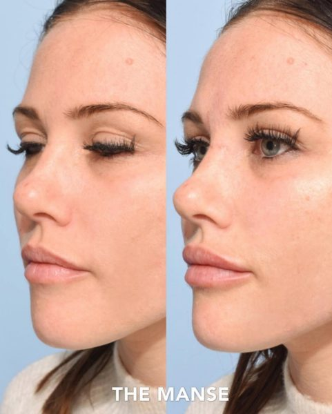 Before and after subtle lip filler and cheek fillers