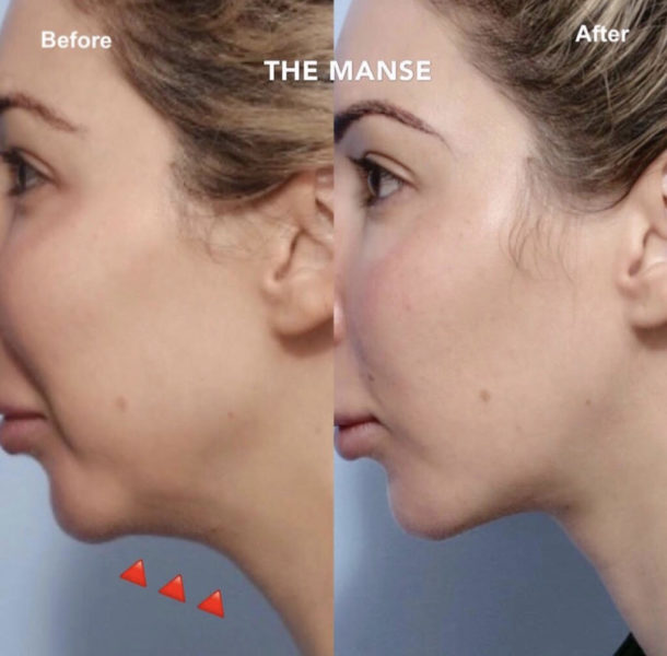 Jawline fat dissolving before and after