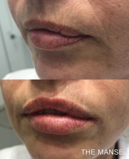 Lip fillers before and after anti-ageing