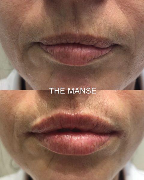 Anti-ageing lip fillers
