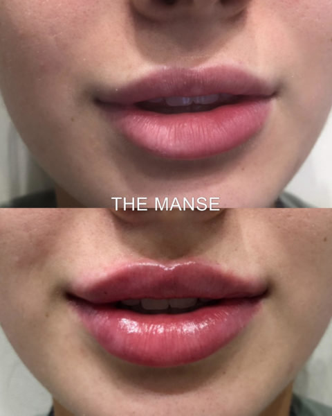 Before and after lip filler Sydney