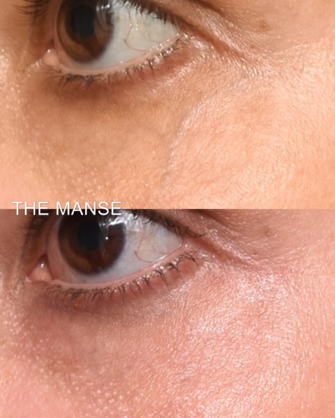 Before and after laser vein removal around eyes
