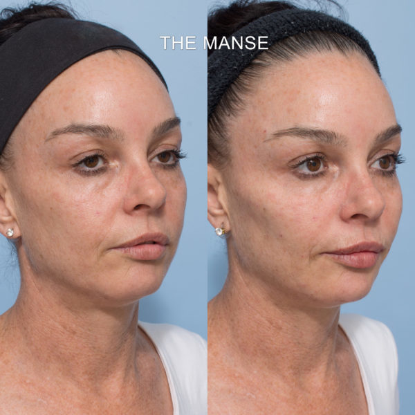 Before and after liquid facelift