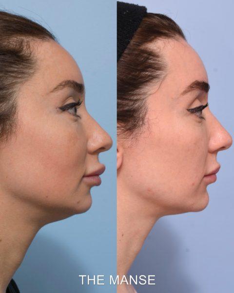 Lip filler removal