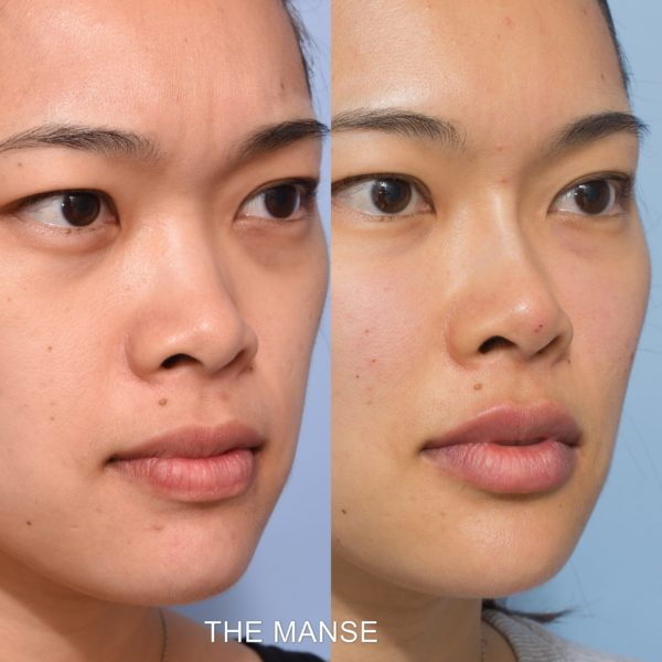 Nose Filler - Best Clinic Sydney for Dermal Fillers