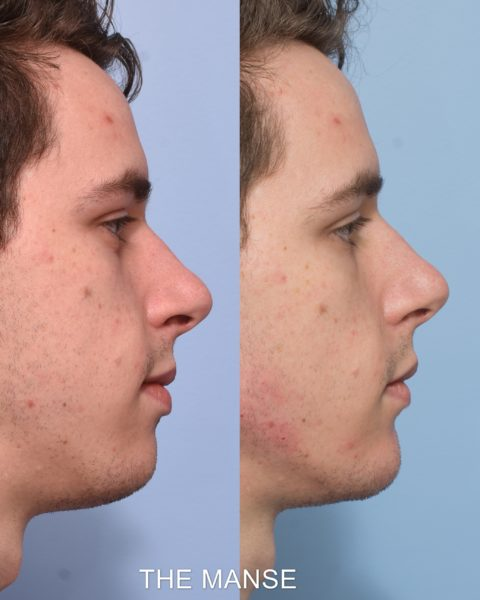 Before and after chin and jawline fillers