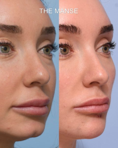 Before and after chin filler sydney