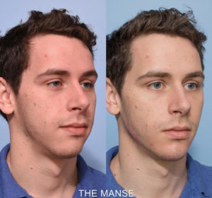 Before and after jawline and chin fillers male. Masculinization