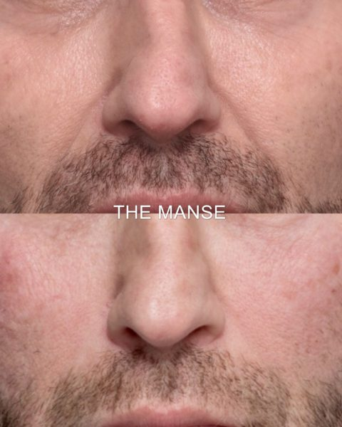 Before and after nasolabial fold fillers