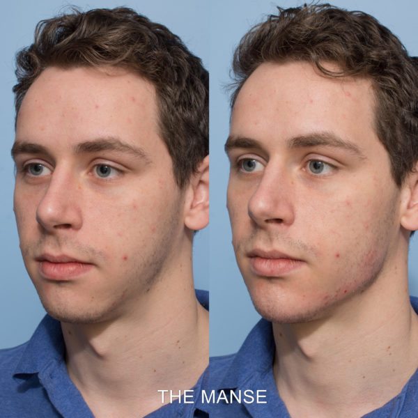 Chin and jawline fillers male