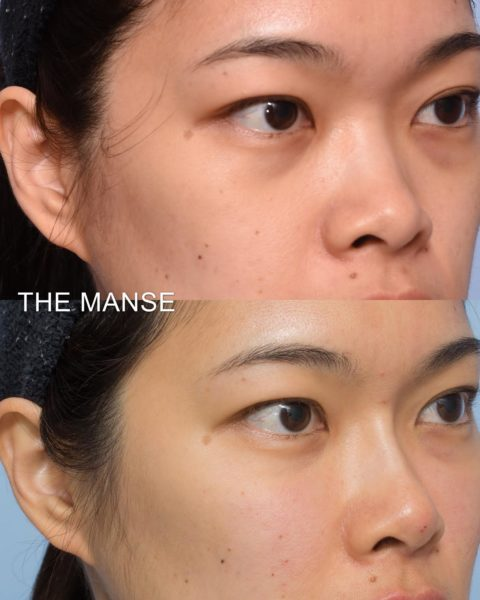 Before and after front cheeks and tear troughs asian