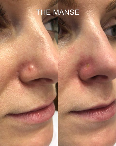 Before-and-immediately-after-laser-mole-removal