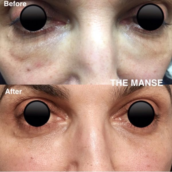 Before and after hyalase to dissolve filler under eyes