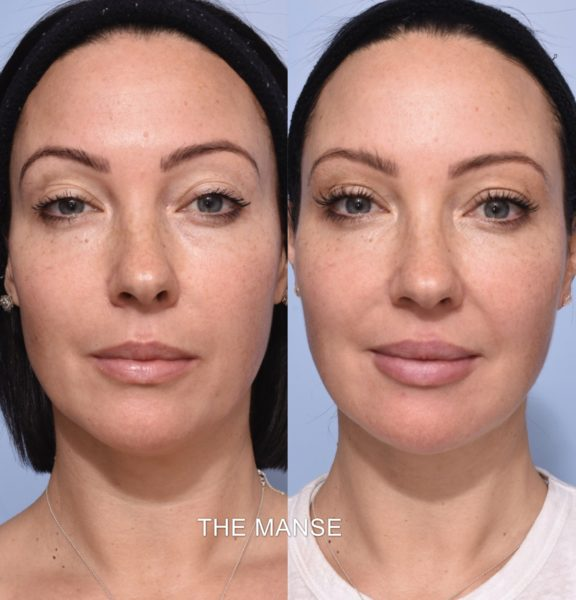 Best Clinic Sydney For Dermal Fillers