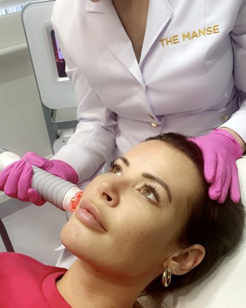RF microneedling fractional RF to a patient at our Sydney clinic