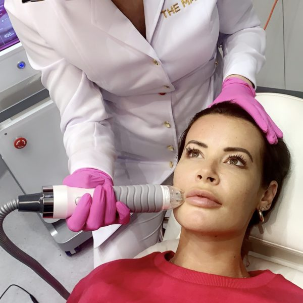 RF Microneedling Aftercare - Best Clinic Sydney for Dermal