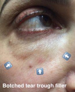 Botched filler under eyes