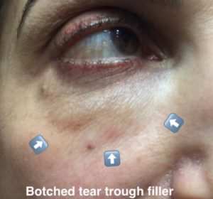 Botched filler under eyes