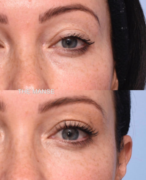 dermal filler for under eye hollowing