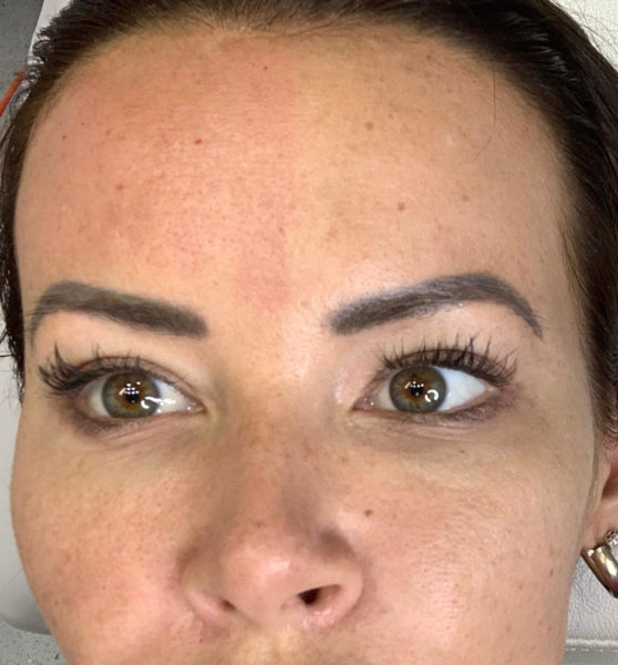 Redness after RF microneedling skin tightening treatment