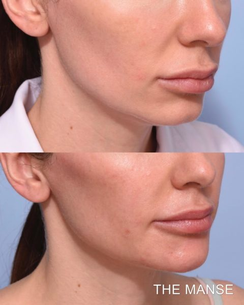Before and after chin and cheek fillers