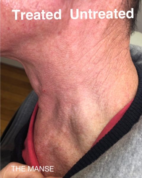 Neck wrinkles before and after