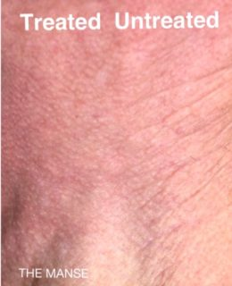 Skin after RF microneedling, IPL laser, skinbooster and biostimulator