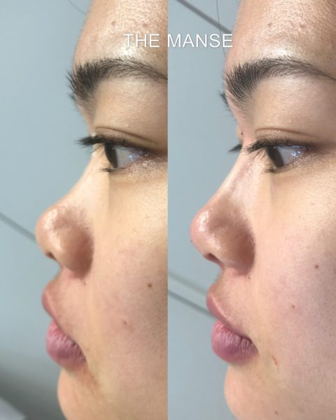 Before and after nose bridge filler