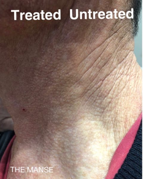 Before and after skin treatments for neck wrinkles