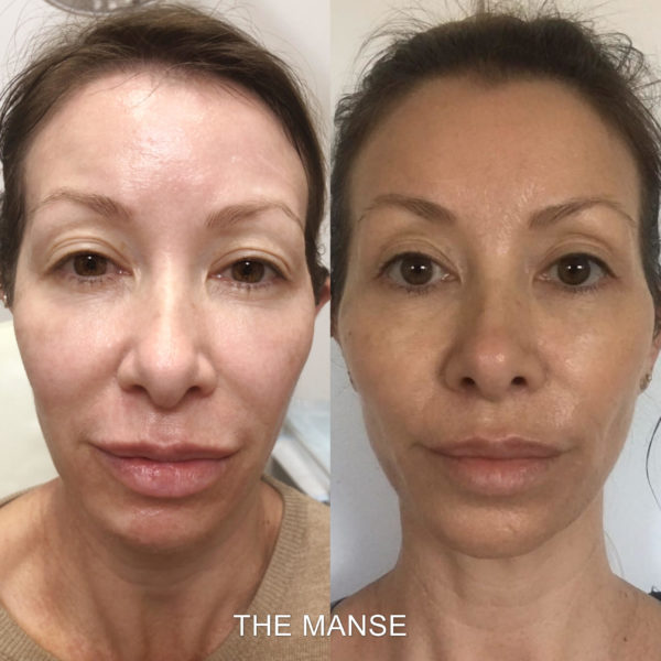 Before and after threadlift