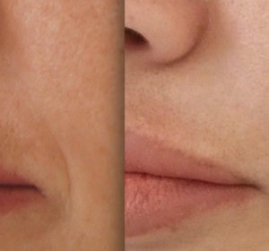 Before and after melasma treatment on lip