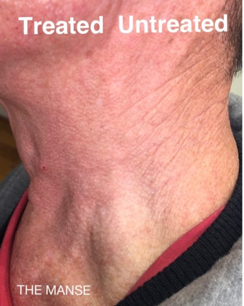 neck skin improvement